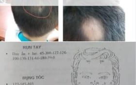 Làm thế nào để Diện Chẩn hết rụng tóc