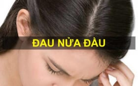 Diện Chẩn đau nửa đầu