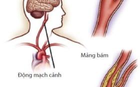 Diện Chẩn khắc phục xơ vữa động mạch cảnh