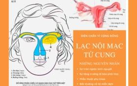Diện Chẩn – Lạc nội mạc tử cung