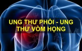 Diện Chẩn chăm sóc Ung thư phổi – vòm họng
